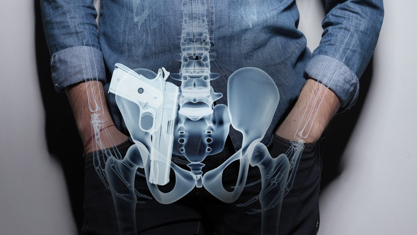 "AIWB, or Appendix Inside the Waist Bang is often simply referred to as ""Appendix Carry."""